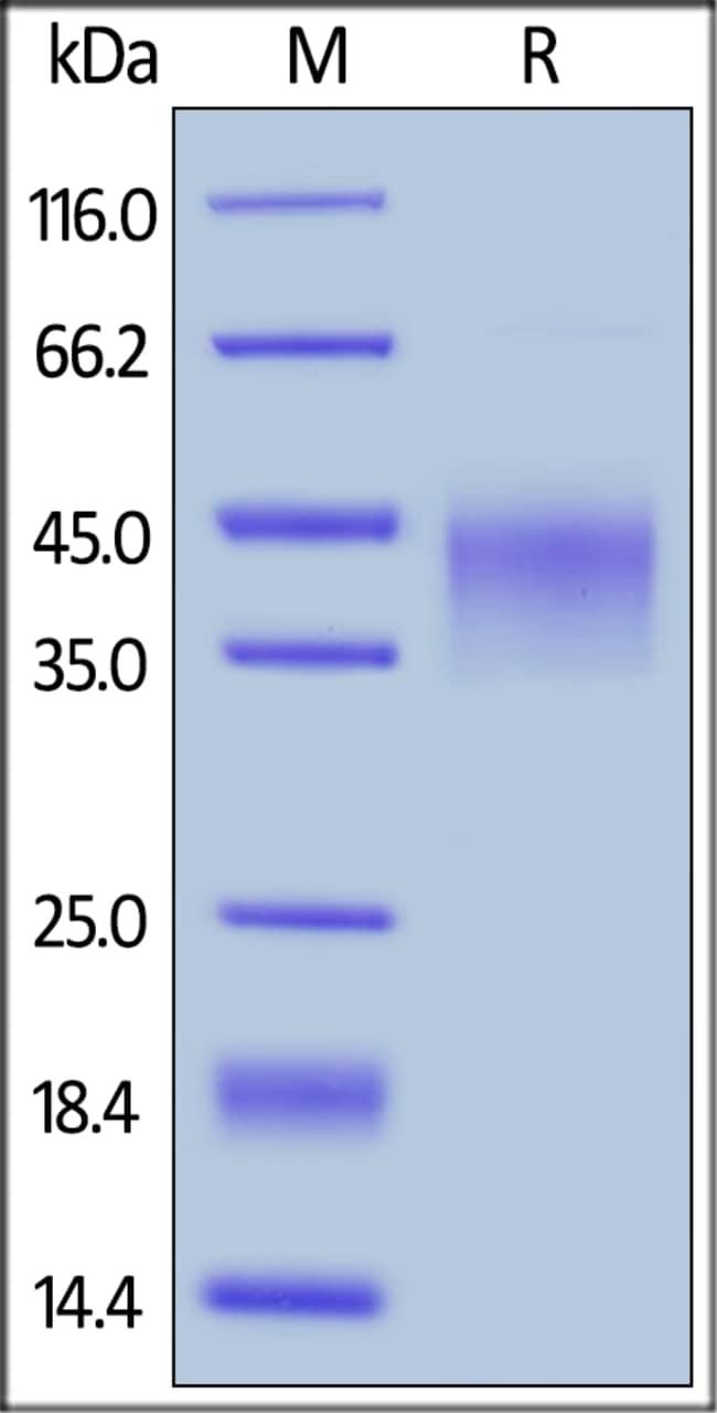 ACROBiosystemsHuman LAP (TGF-beta 1) Protein, His Tag 100 ug ACROBiosystemsHuman LAP (TGF-beta 1) Protein, His Tag