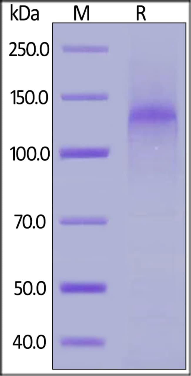 ACROBiosystems100UG HUMAN LDL R PROTEIN-HIS TAG  Produkte