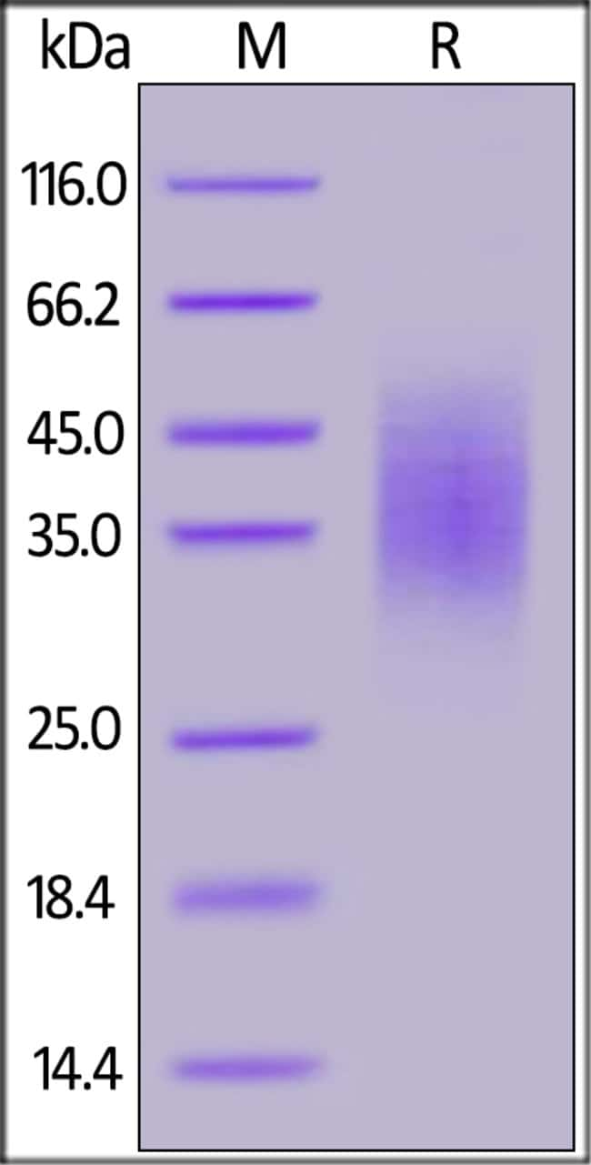 ACROBiosystems Human CD58 / LFA-3 Protein, His Tag 1 mg ACROBiosystems Human CD58 / LFA-3 Protein, His Tag