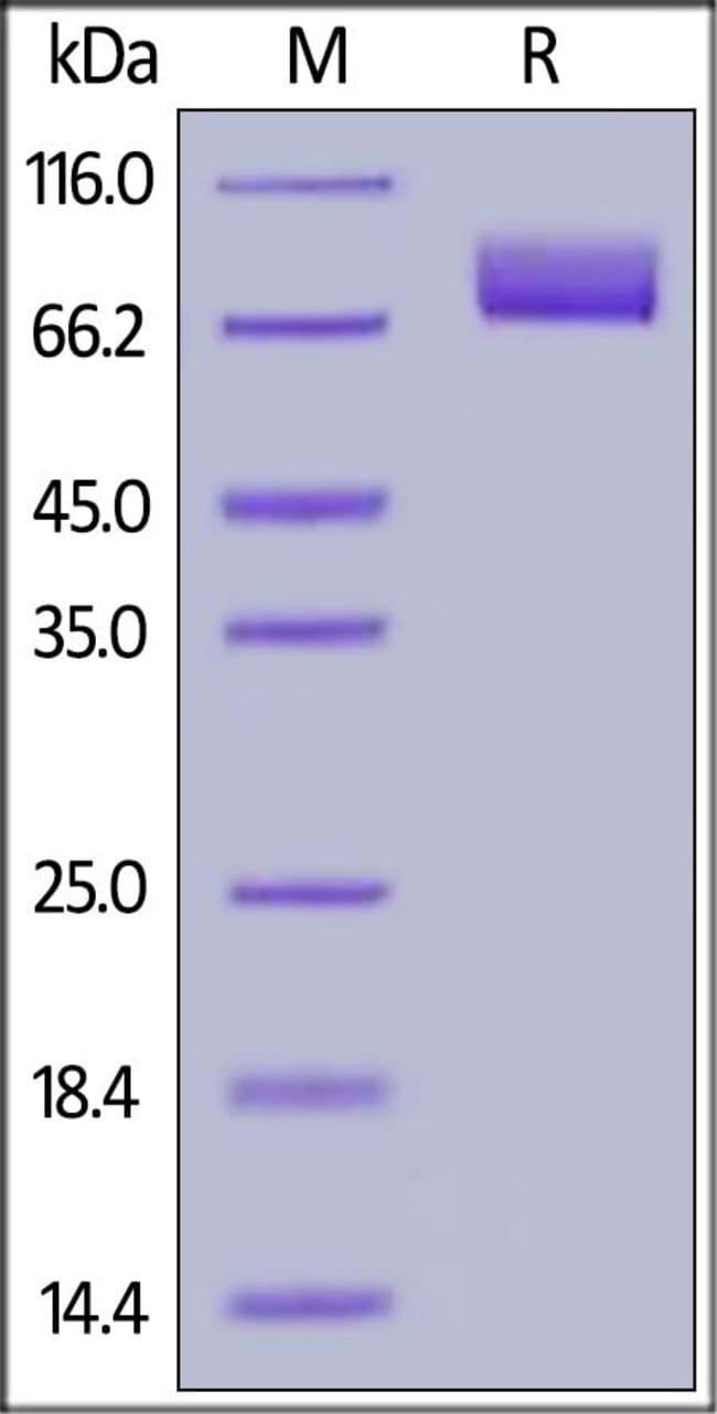 ACROBiosystems100ug Human MAG / Siglec-4a Protein, His Tag  Produkte
