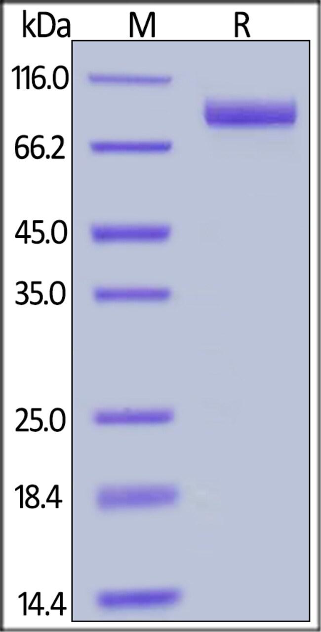 ACROBiosystemsHuman Neprilysin / MME / CD10 Protein, Tag Free 50 ug ACROBiosystemsHuman Neprilysin / MME / CD10 Protein, Tag Free