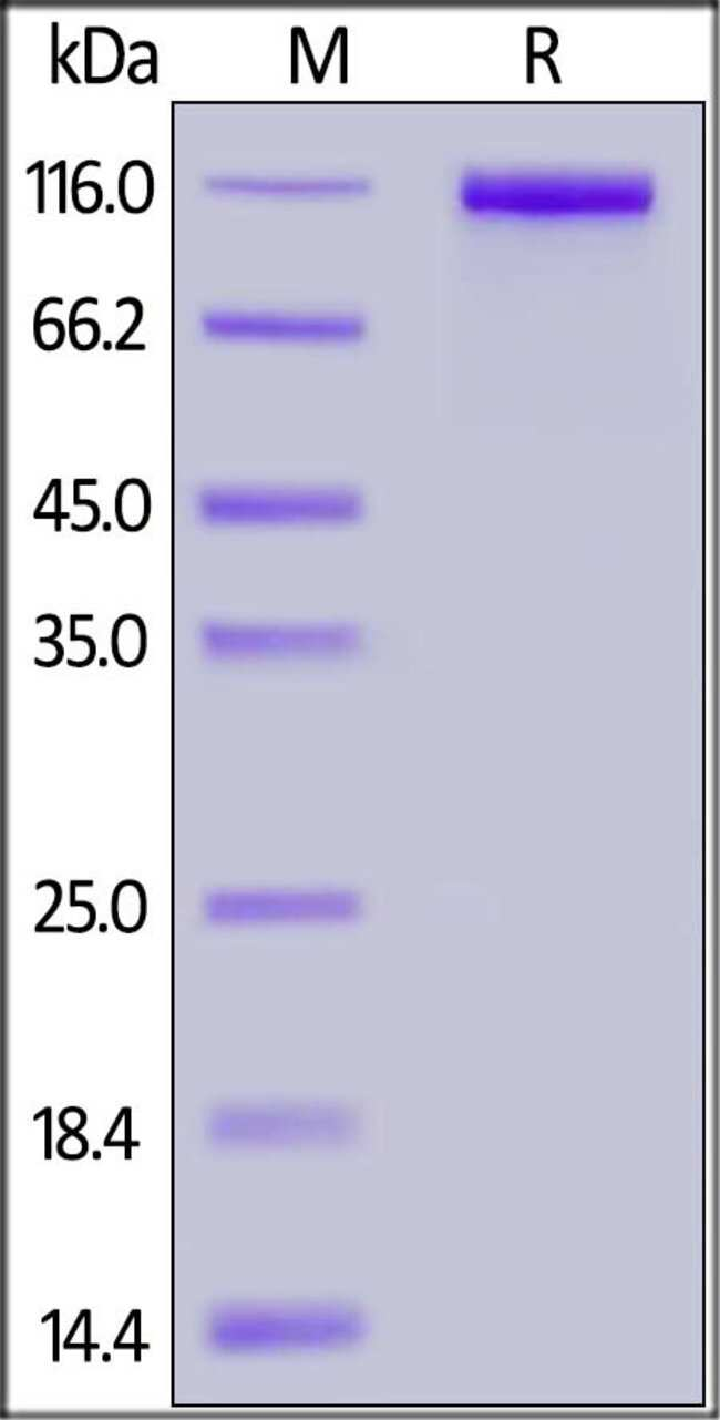 ACROBiosystemsHuman Neprilysin / MME / CD10 Protein, Fc Tag 1 mg ACROBiosystemsHuman Neprilysin / MME / CD10 Protein, Fc Tag