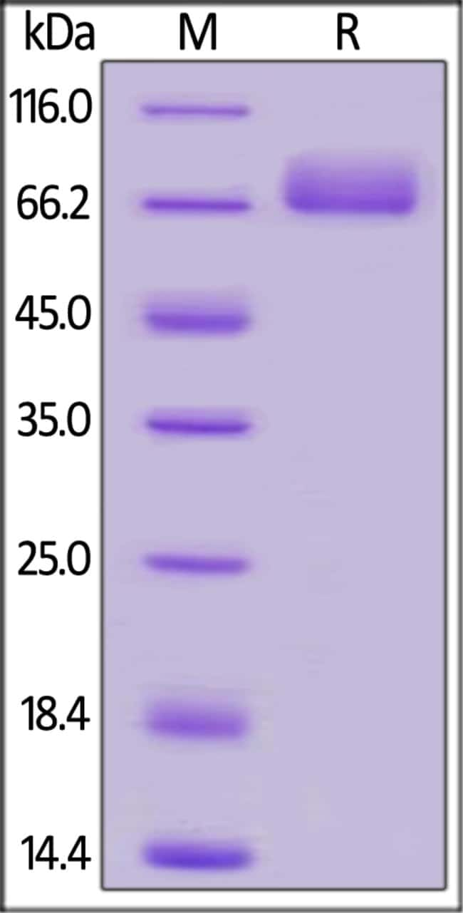 ACROBiosystemsHuman Mesothelin / MSLN (296-580) Protein, Fc Tag 1 mg ACROBiosystemsHuman Mesothelin / MSLN (296-580) Protein, Fc Tag