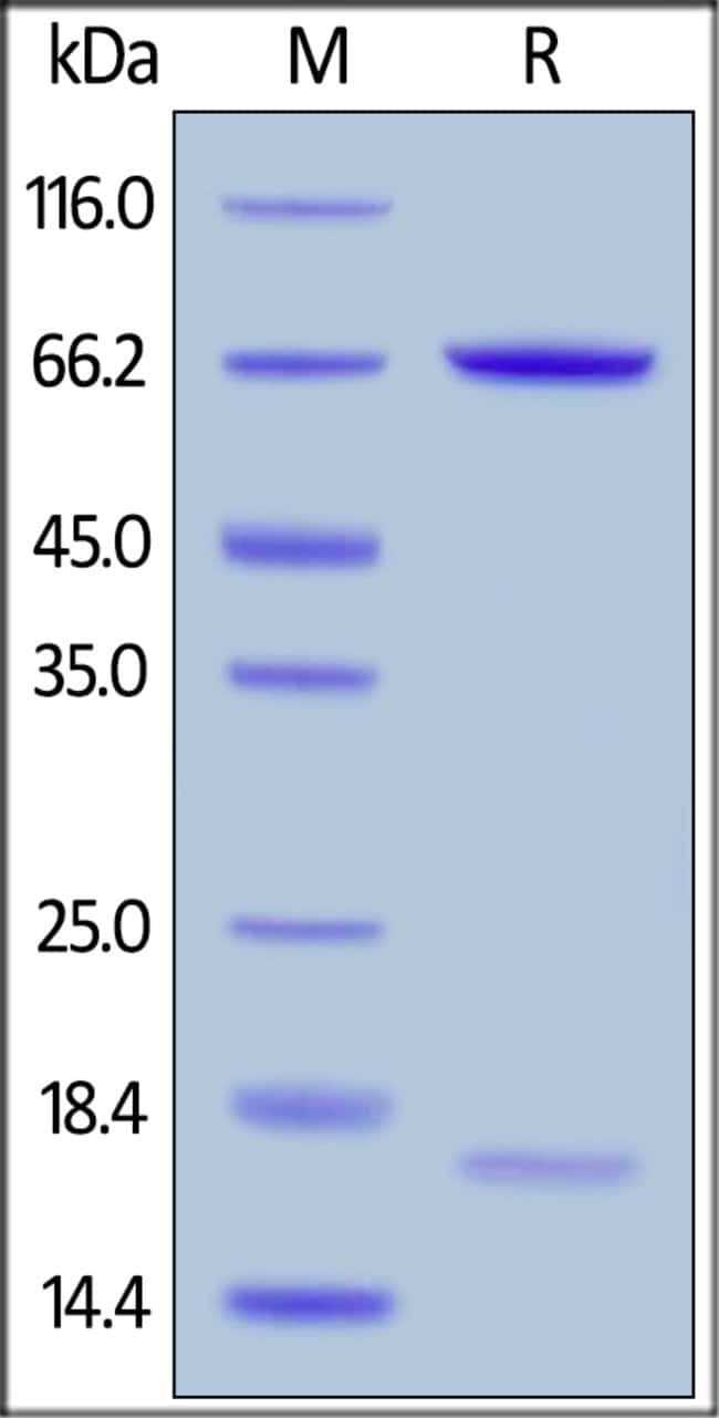 ACROBiosystemsHuman PCSK9 (R194A) Protein, His Tag 50 ug ACROBiosystemsHuman PCSK9 (R194A) Protein, His Tag