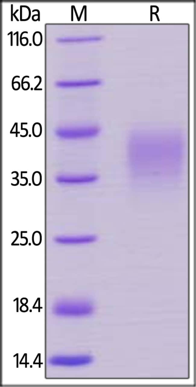 ACROBiosystemsBiotinylated Human PD-1 / PDCD1 Protein, Avitag™,His Tag 25 ug ACROBiosystemsBiotinylated Human PD-1 / PDCD1 Protein, Avitag™,His Tag