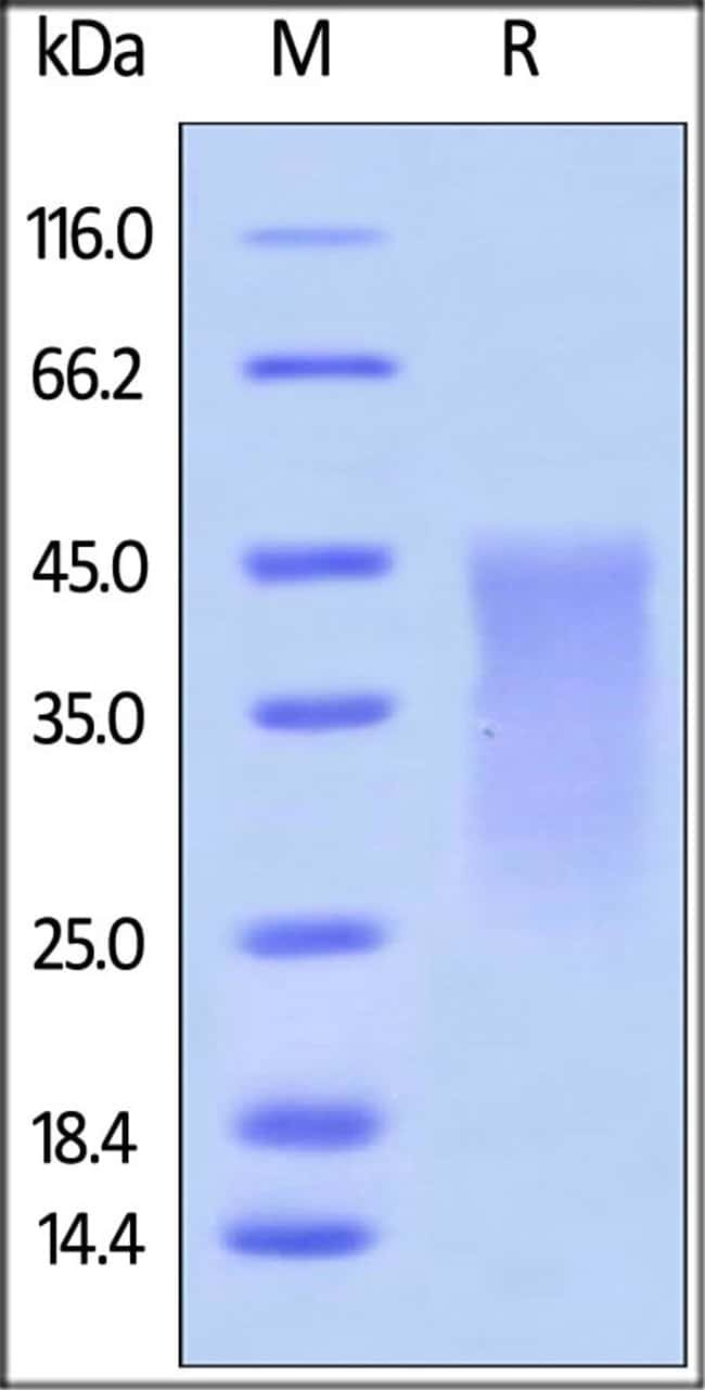 ACROBiosystemsMouse PD-1 / PDCD1 Protein, His Tag 100 ug ACROBiosystemsMouse PD-1 / PDCD1 Protein, His Tag