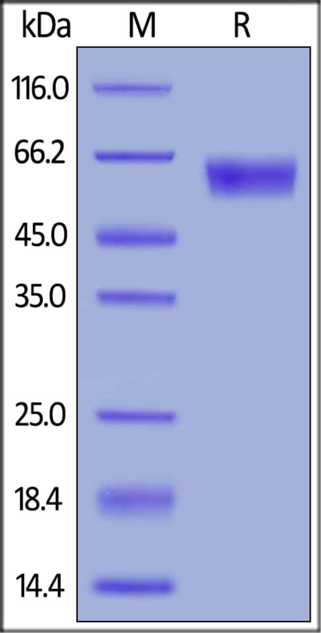 ACROBiosystemsMouse PD-1 / PDCD1 Protein, Mouse IgG2a Fc Tag 1 mg ACROBiosystemsMouse PD-1 / PDCD1 Protein, Mouse IgG2a Fc Tag