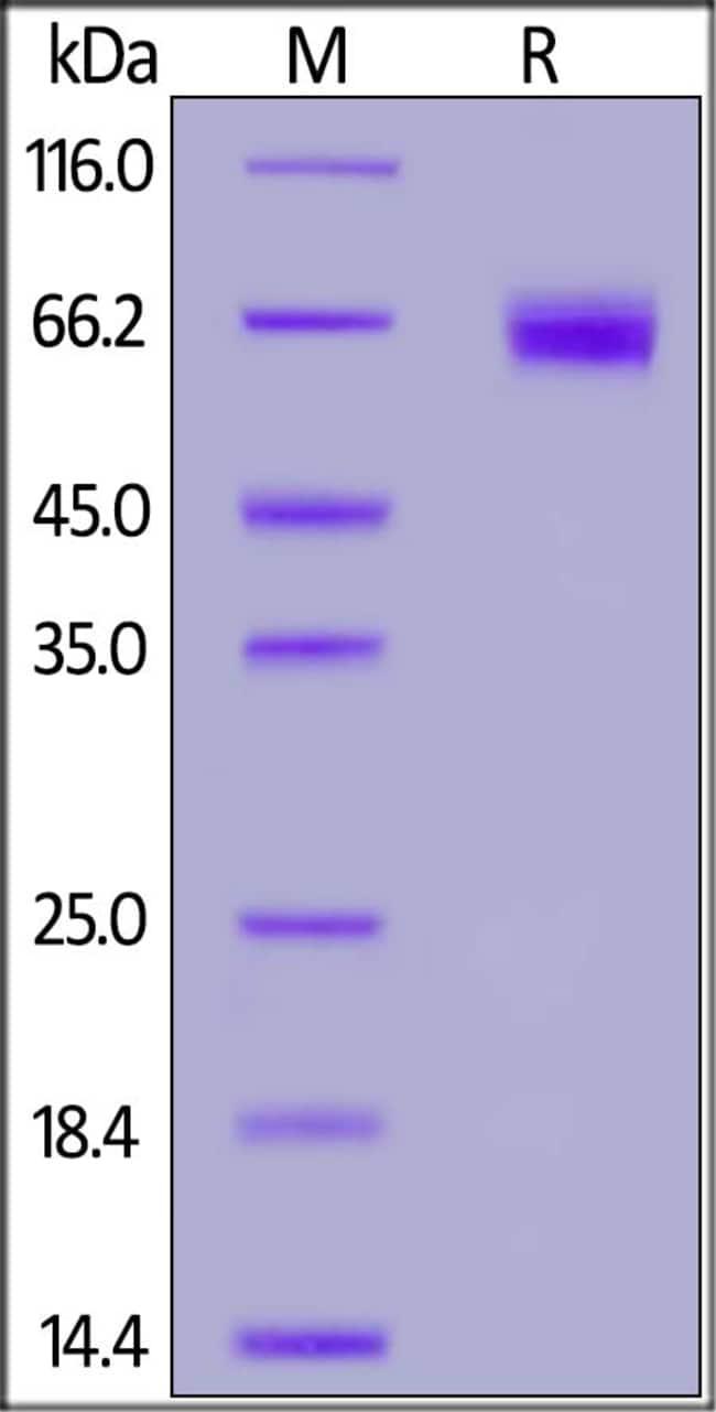ACROBiosystemsBiotinylated Mouse PD-1 / PDCD1 Protein, Fc, Avitag™ 200 ug ACROBiosystemsBiotinylated Mouse PD-1 / PDCD1 Protein, Fc, Avitag™