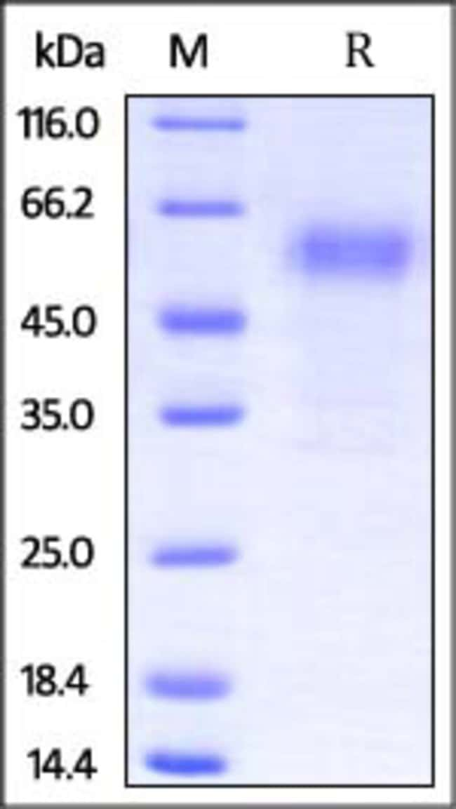 ACROBiosystemsRabbit PD-1 / PDCD1 Protein, Fc Tag 100 ug ACROBiosystemsRabbit PD-1 / PDCD1 Protein, Fc Tag