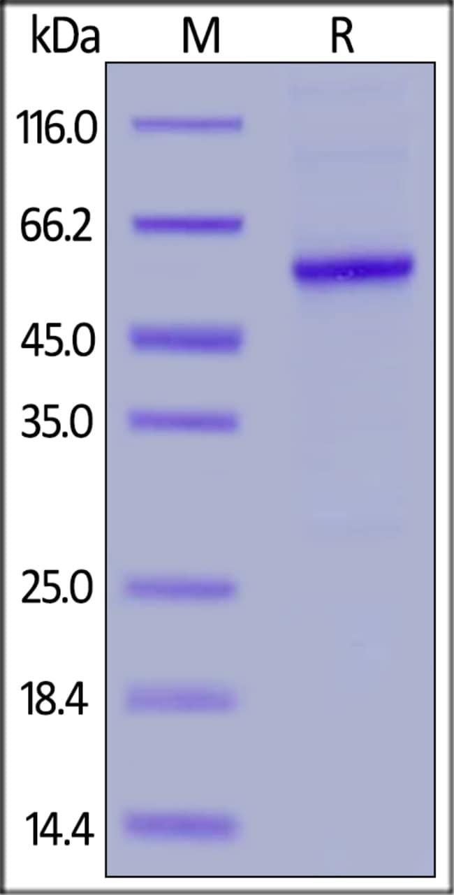 ACROBiosystems100ug Human Properdin Protein, His Tag  Produkte