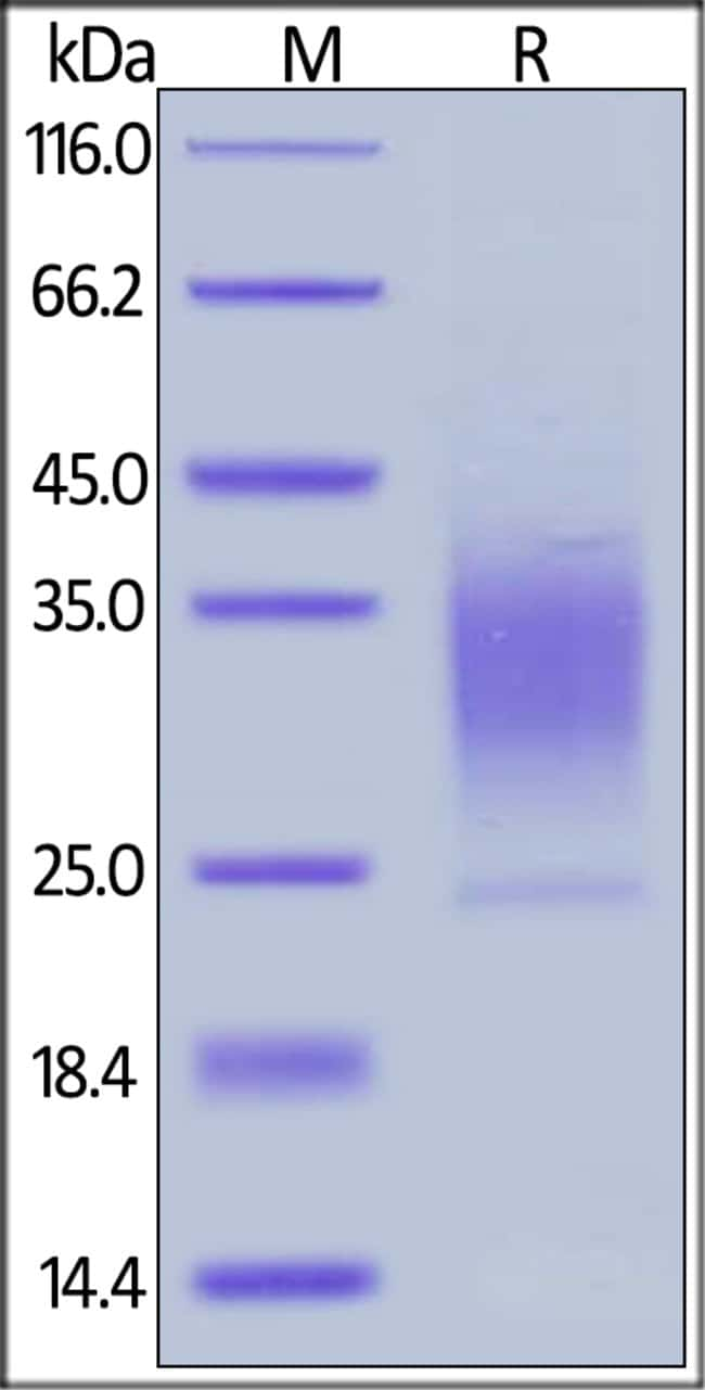 ACROBiosystemsHuman PTH1R / PTHR1 Protein, His Tag 100 ug ACROBiosystemsHuman PTH1R / PTHR1 Protein, His Tag