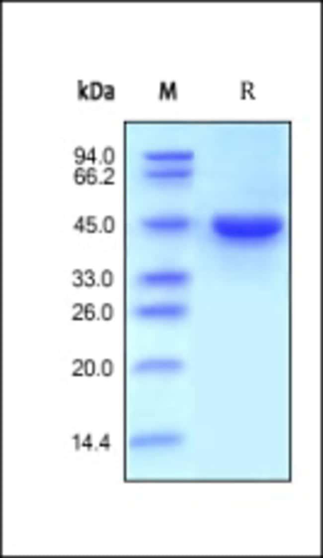 ACROBiosystemsHuman RENIN Protein, His Tag 1 mg ACROBiosystemsHuman RENIN Protein, His Tag