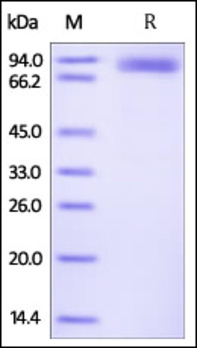 ACROBiosystems50UG Human ROR2 / NTRKR2 Protein, Fc Tag  Produkte