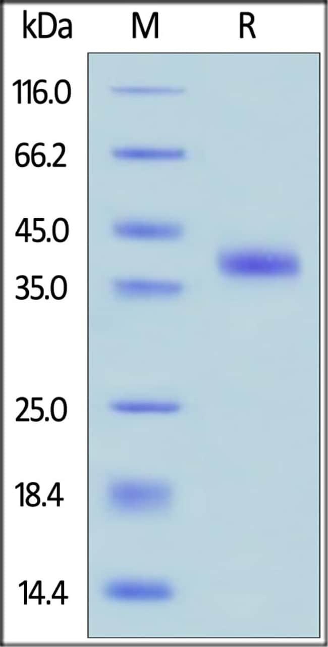 ACROBiosystemsHuman R-Spondin 1 / RSPO1 Protein, His Tag 1 mg ACROBiosystemsHuman R-Spondin 1 / RSPO1 Protein, His Tag