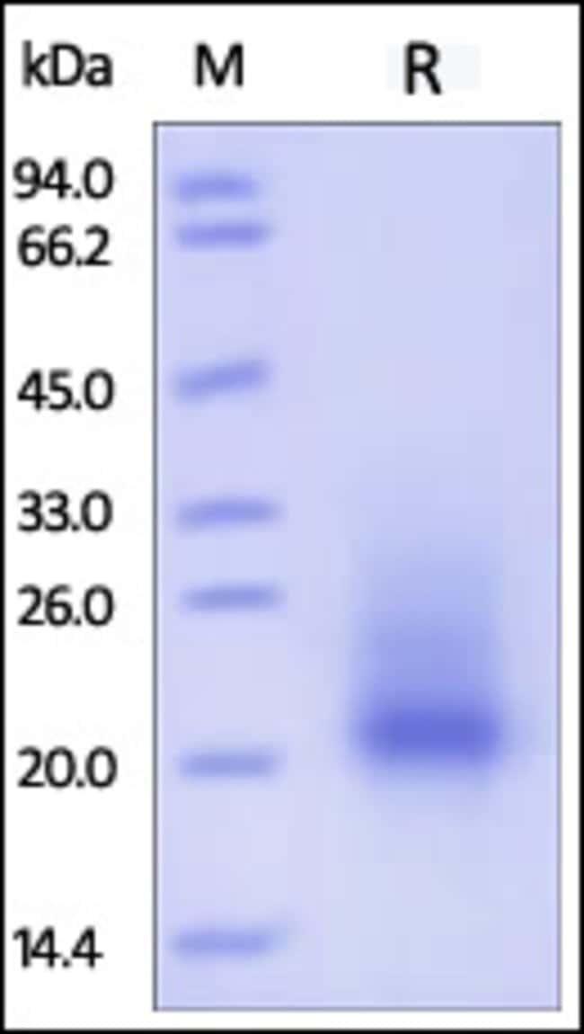ACROBiosystems20UG Mouse SCF / KITLG Protein  Produkte