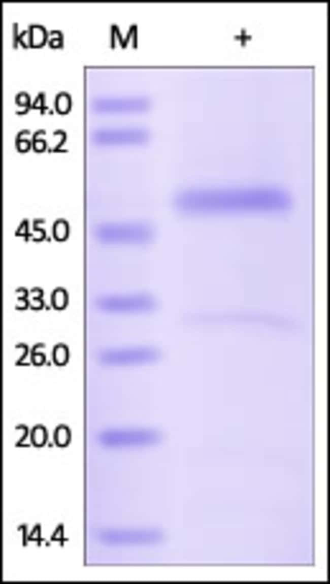 ACROBiosystemsHuman Serpin H1 Protein, His Tag 1 mg ACROBiosystemsHuman Serpin H1 Protein, His Tag
