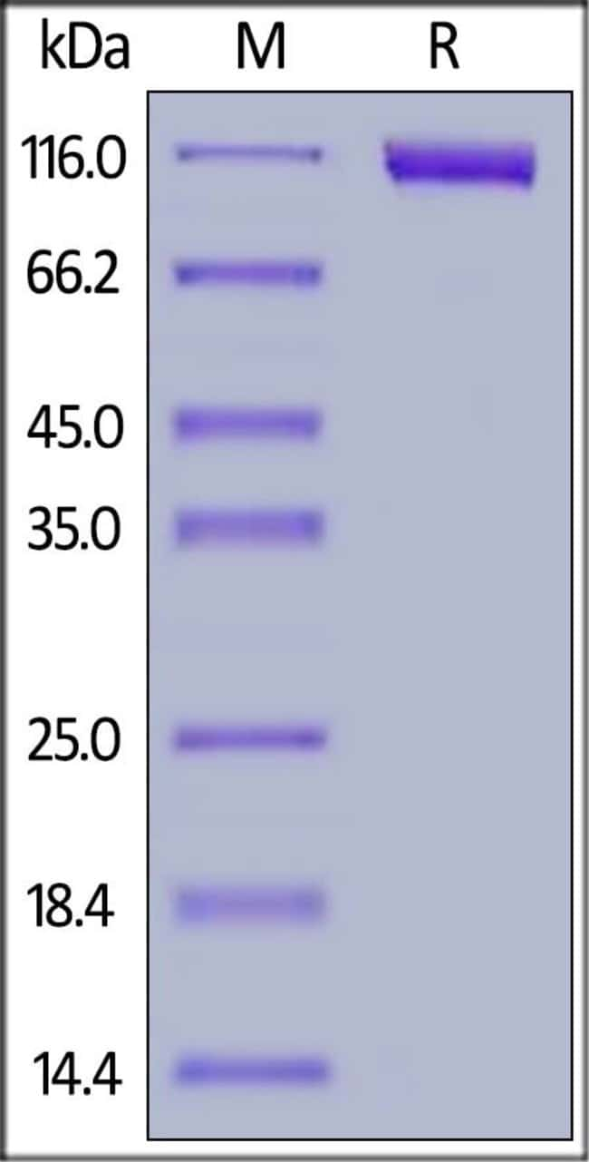 ACROBiosystems25ug Biotinylated Human Siglec-10 Protein, Fc,Avitag  Produkte