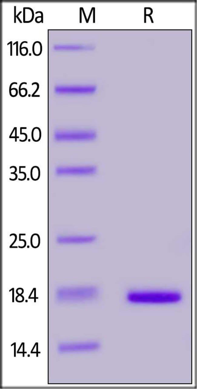 ACROBiosystemsHuman Stathmin 1 / STMN1 Protein, His Tag 100 ug ACROBiosystemsHuman Stathmin 1 / STMN1 Protein, His Tag