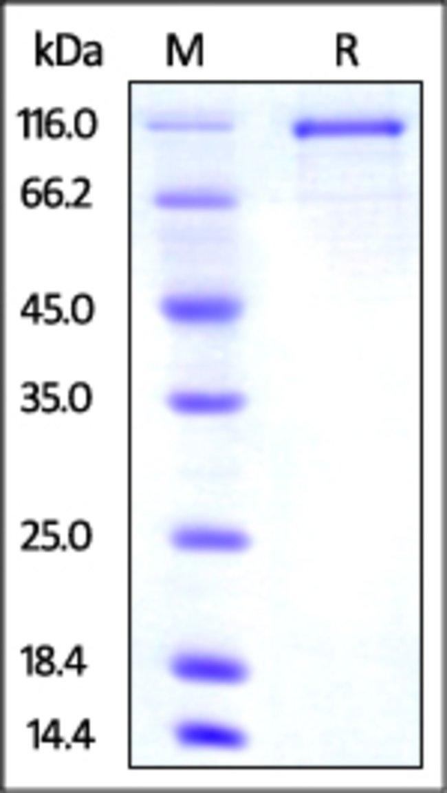ACROBiosystemsMouse Transferrin R2 Protein, mouse IgG1 Fc Tag, low endotoxin 50 ug ACROBiosystemsMouse Transferrin R2 Protein, mouse IgG1 Fc Tag, low endotoxin