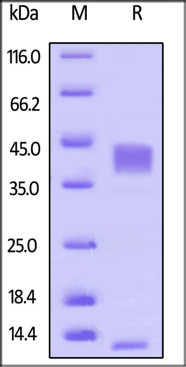 ACROBiosystemsHuman Latent TGF-beta 1 / TGFB1 Protein, His Tag 50 ug ACROBiosystemsHuman Latent TGF-beta 1 / TGFB1 Protein, His Tag