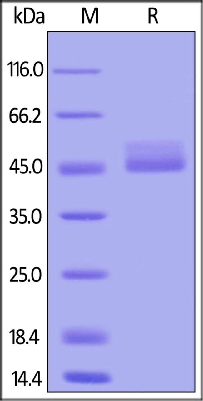 ACROBiosystemsCynomolgus / Rhesus macaque TIGIT Protein, Fc Tag 1 mg ACROBiosystemsCynomolgus / Rhesus macaque TIGIT Protein, Fc Tag