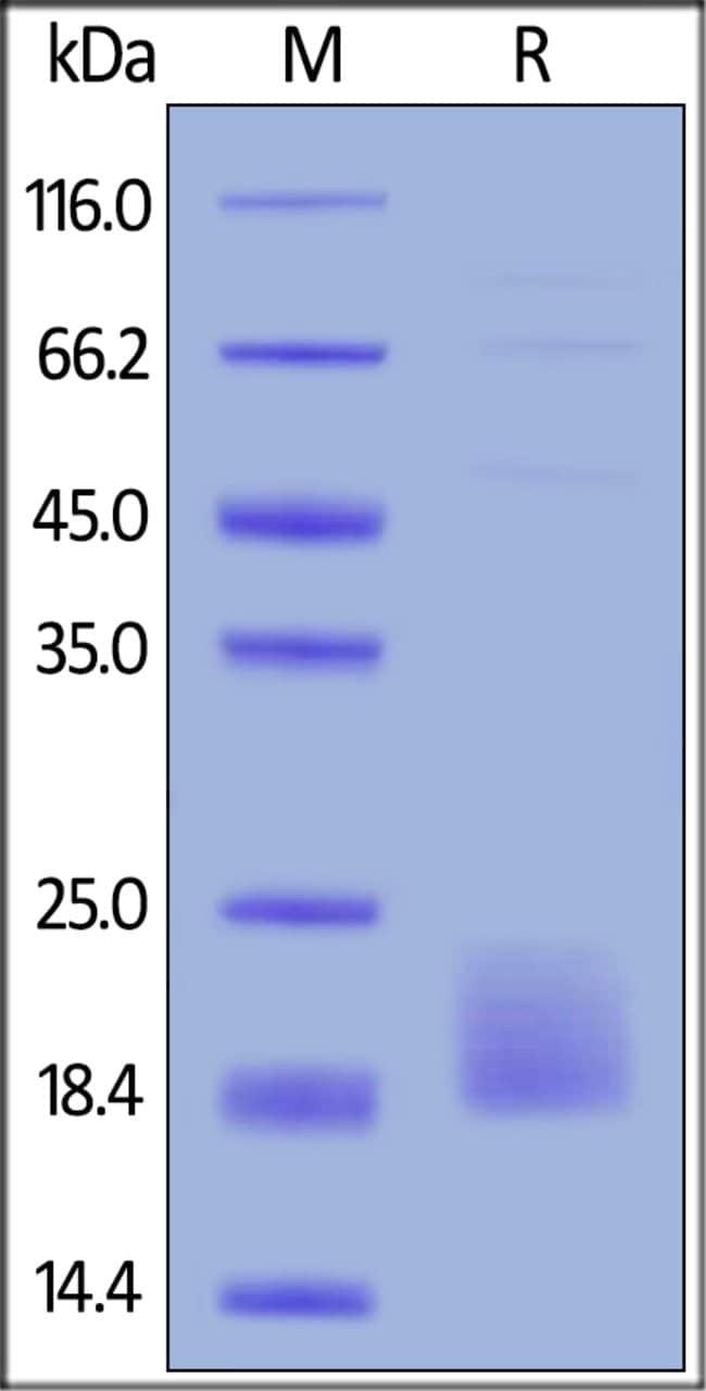 ACROBiosystemsBiotinylated Human TIGIT Protein, Avitag™,His Tag 25 ug ACROBiosystemsBiotinylated Human TIGIT Protein, Avitag™,His Tag