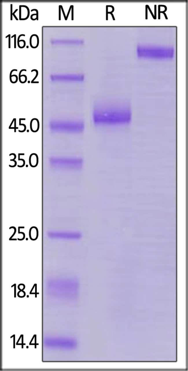 ACROBiosystemsBiotinylated Human TIGIT Protein, Fc,Avitag™ 200 ug ACROBiosystemsBiotinylated Human TIGIT Protein, Fc,Avitag™