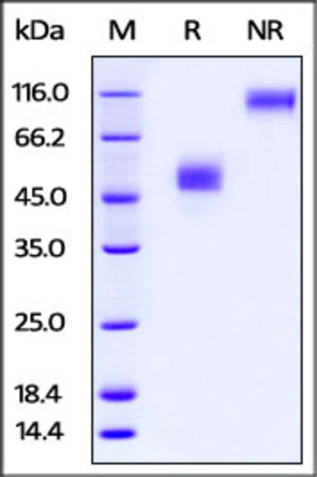 ACROBiosystemsRabbit TIGIT Protein, Fc Tag 50 ug ACROBiosystemsRabbit TIGIT Protein, Fc Tag