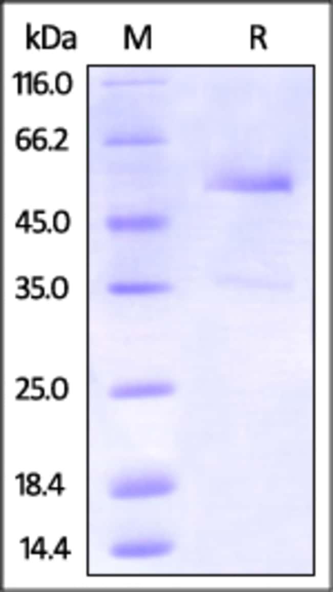 ACROBiosystemsCynomolgus DR3 / TNFRSF25 Protein, Fc Tag 100 ug ACROBiosystemsCynomolgus DR3 / TNFRSF25 Protein, Fc Tag