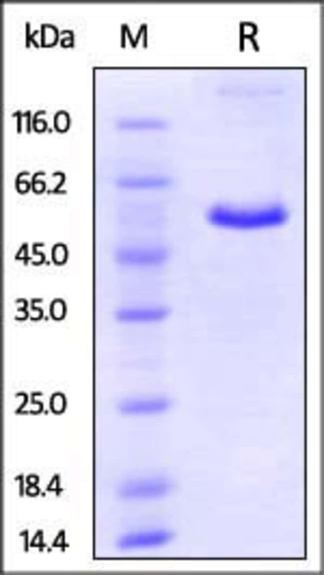 ACROBiosystemsMouse CD40 / TNFRSF5 Protein, Fc Tag 100 ug ACROBiosystemsMouse CD40 / TNFRSF5 Protein, Fc Tag