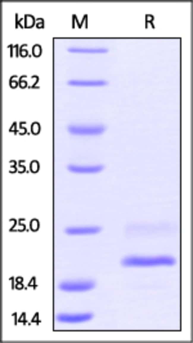 ACROBiosystemsBiotinylated Mouse TNF-alpha Protein, His,Avitag™ (active trimer) 25 ug ACROBiosystemsBiotinylated Mouse TNF-alpha Protein, His,Avitag™ (active trimer)