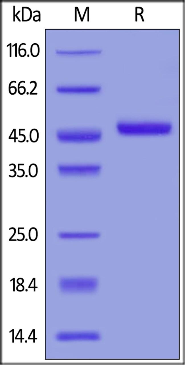 ACROBiosystemsHuman TRAIL R1 / DR4 / TNFRSF10A Protein, Fc Tag 100 ug ACROBiosystemsHuman TRAIL R1 / DR4 / TNFRSF10A Protein, Fc Tag