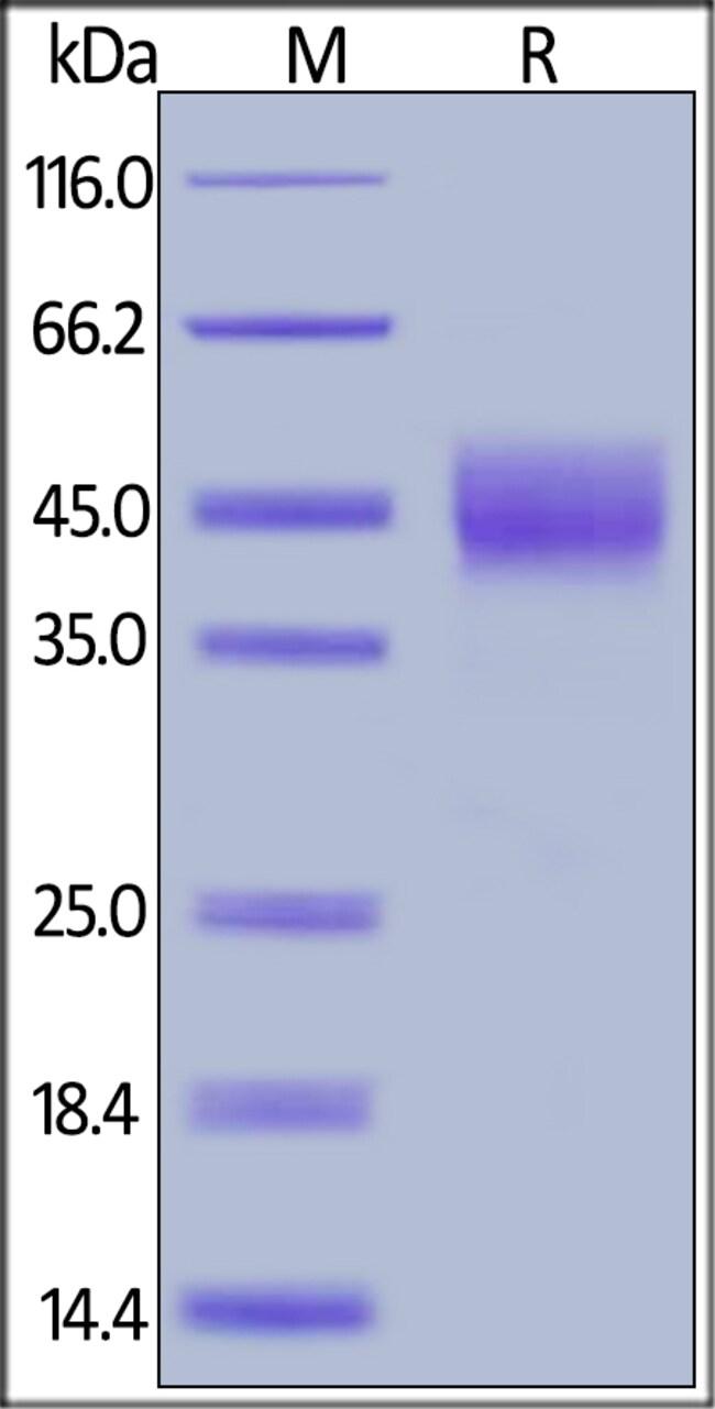 ACROBiosystems25ug Biotinylated Human TROP-2 / TACSTD2 Protein,His,Avitag  Produkte