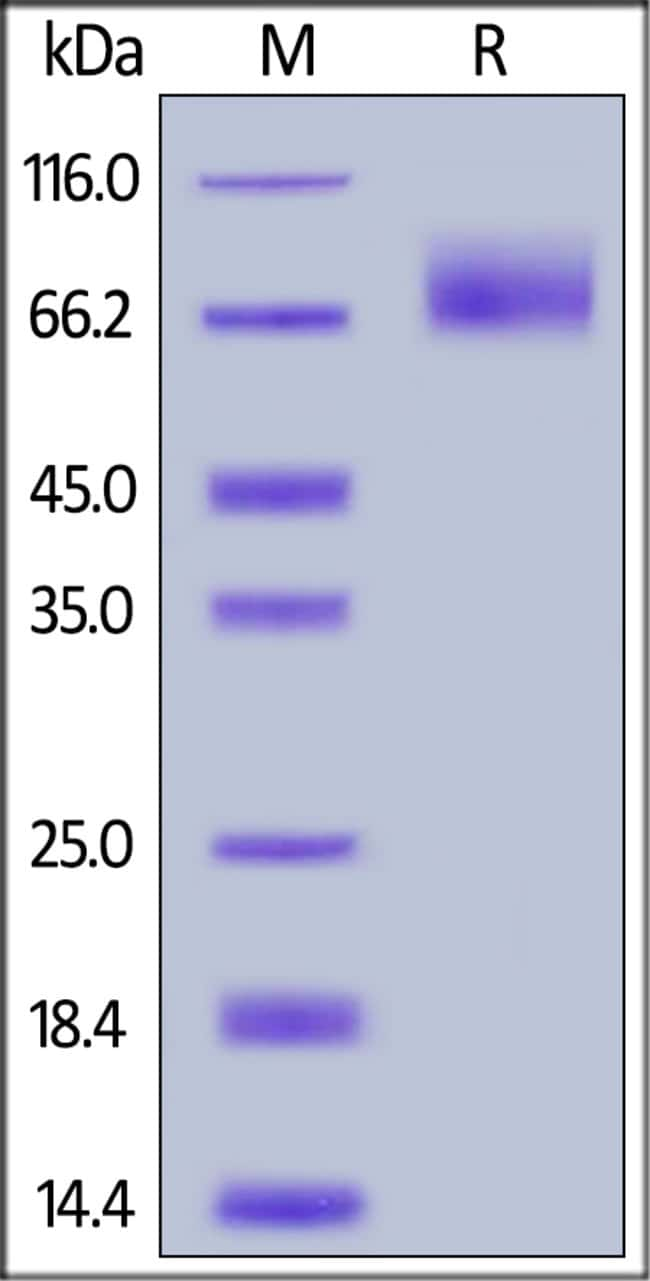 ACROBiosystems100ug Human TrkA / NTRK1 (192-402) Protein, MouseIgG2a Fc Tag  Produkte