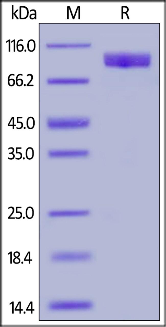ACROBiosystemsHuman TYRO3 / Dtk Protein, Fc Tag 200 ug ACROBiosystemsHuman TYRO3 / Dtk Protein, Fc Tag