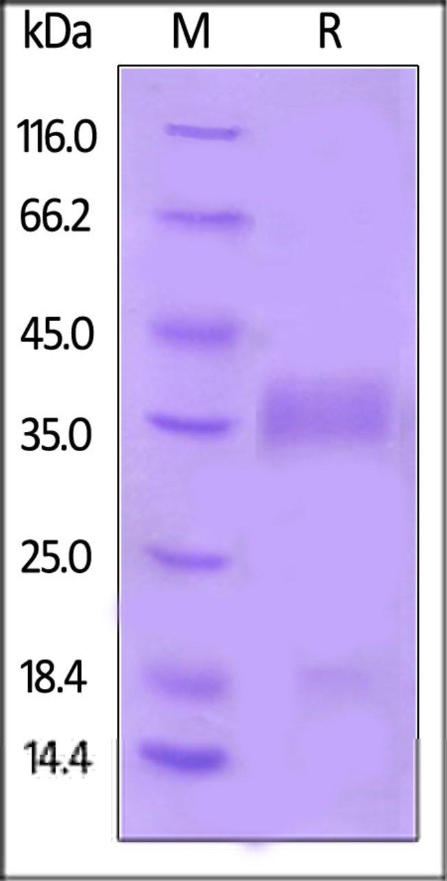 ACROBiosystemsHuman VEGF-B Protein, His Tag 20 ug ACROBiosystemsHuman VEGF-B Protein, His Tag