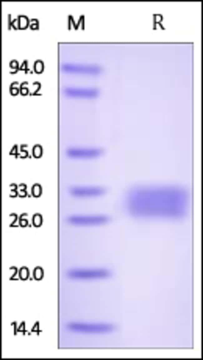 ACROBiosystemsHuman VSIG2 Protein, His Tag 200 ug ACROBiosystemsHuman VSIG2 Protein, His Tag