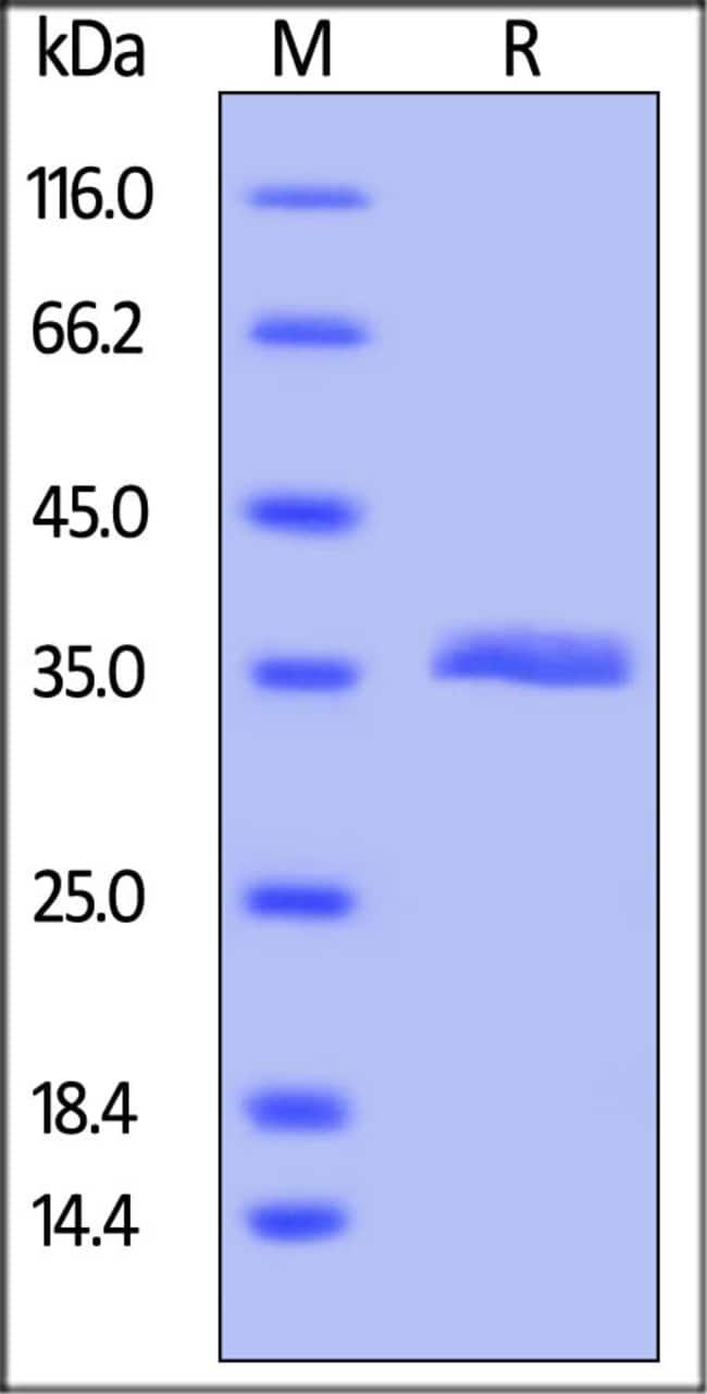 ACROBiosystems100UG Human VSIG8 Protein  Produkte