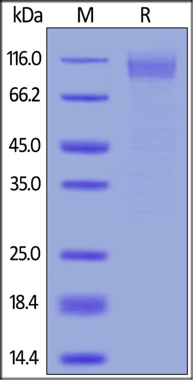 ACROBiosystemsEbolavirus EBOV (subtype Zaire, strain Kikwit-95) Envelope Glycoprotein 1 (GP1) Protein, His Tag 100 ug ACROBiosystemsEbolavirus EBOV (subtype Zaire, strain Kikwit-95) Envelope Glycoprotein 1 (GP1) Protein, His Tag