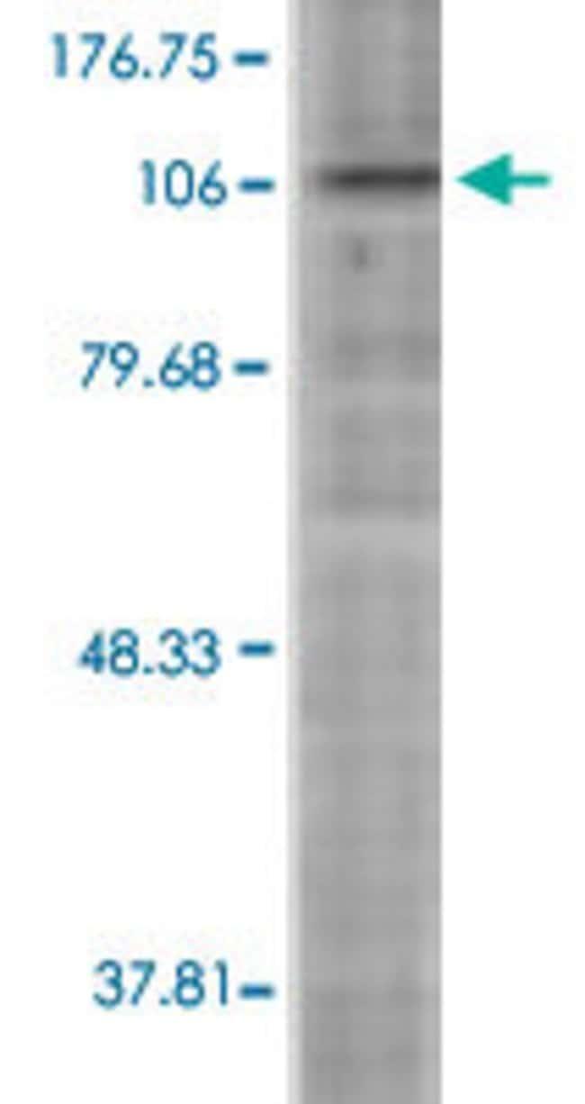 Hif1a, Mouse anti-Mouse, ATTO565, Clone: ESEE122, Abnova 100µg; ATTO565