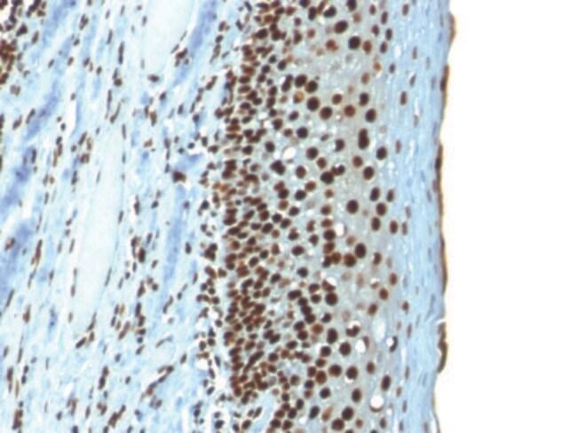 Histone H1 Mouse, Clone: r1415-1, enQuireBio™ 100 μg prodotti trovati
