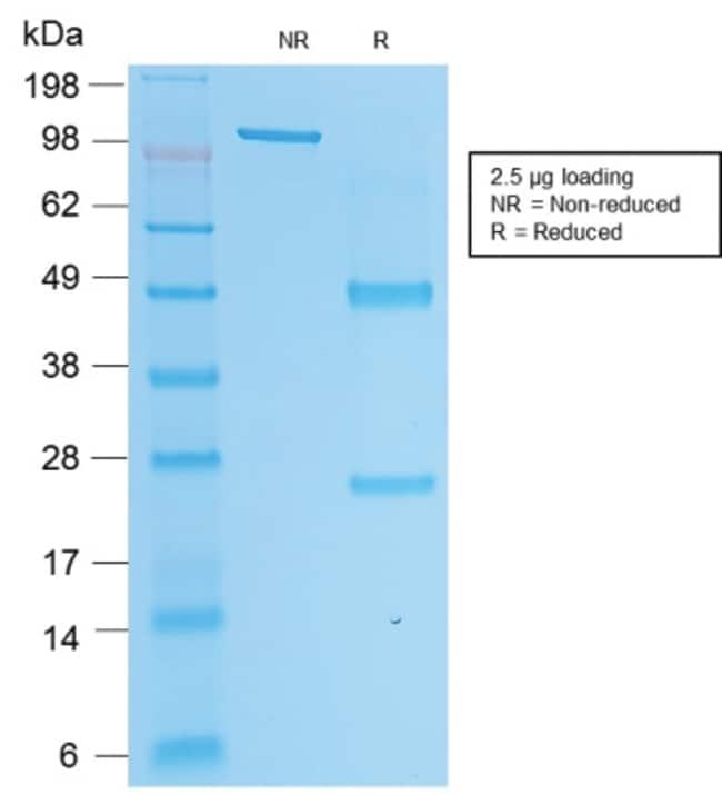Prostate Specific Acid Phosphatase (PSAP) Mouse, Clone: rACPP/1338, enQuireBio™ 20 μg Produkte