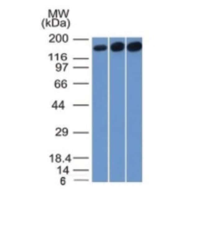 Topoisomerase II alpha Mouse, Clone: TOP2A/1361, enQuireBio™ 100 μg prodotti trovati
