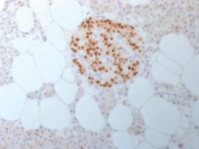 SingleStep Poly-HRP anti-Rabbit IgG (H+L) Secondary Antibody 100 mL SingleStep Poly-HRP anti-Rabbit IgG (H+L) Secondary Antibody