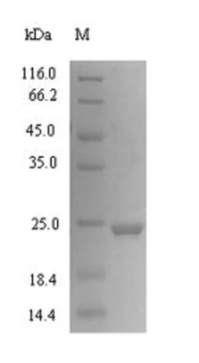 enQuireBio™Recombinant Human CXCL1 / MGSA / NAP-3 Protein 100μg enQuireBio™Recombinant Human CXCL1 / MGSA / NAP-3 Protein