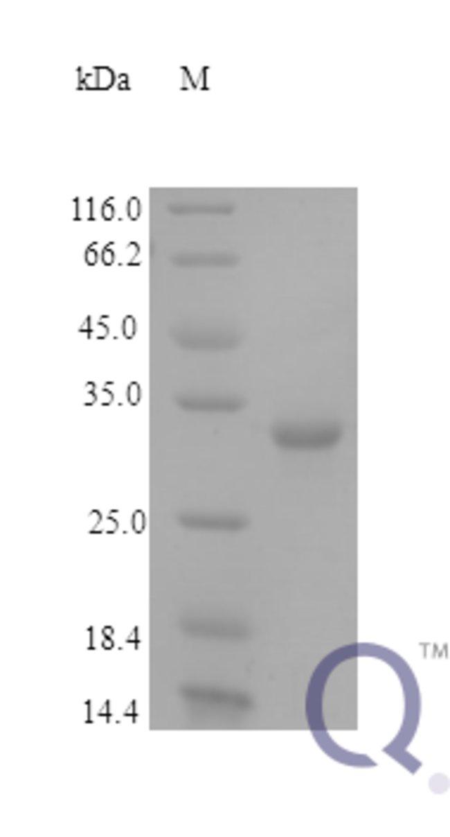 enQuireBio™Recombinant Human Fructose-2,6-bisphosphatase TIGAR Protein 5μg enQuireBio™Recombinant Human Fructose-2,6-bisphosphatase TIGAR Protein
