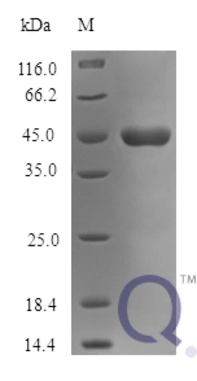 enQuireBio™Recombinant Human SerpinI1 / Neuroserpin Protein 25μg enQuireBio™Recombinant Human SerpinI1 / Neuroserpin Protein