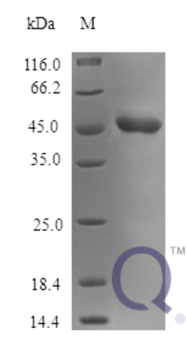 enQuireBio™ Recombinant Human SerpinB2 / PAI-2 Protein 250μg enQuireBio™ Recombinant Human SerpinB2 / PAI-2 Protein