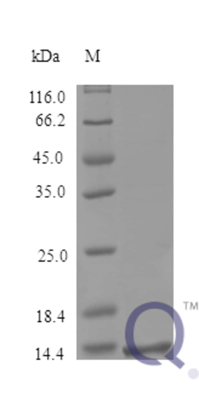 enQuireBio™Recombinant Human MIF / GLIF Protein 250μg enQuireBio™Recombinant Human MIF / GLIF Protein