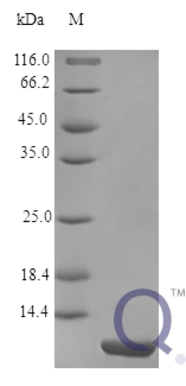 enQuireBio™Recombinant Human pS2 / pNR-2 / Trefoil Factor 1 Protein 20μg enQuireBio™Recombinant Human pS2 / pNR-2 / Trefoil Factor 1 Protein